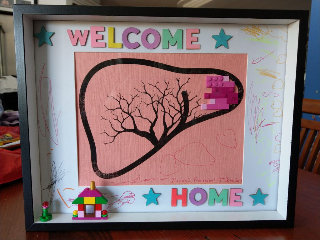 Framed picture saying 'Welcome home' with a diagram of a human liver with Lego pieces overlaying the left lobe.